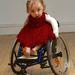 Millie Simpson egy angol kislány, akinek egy ritka rendellenesség miatt nagyon sérülékenyek a csontjai.