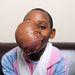 A daganat arca nagy részét elfedte.