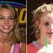 Britney Spearst magas, sőt kimondottan széles homlokkal áldotta meg az isten, a helyzet pedig az utóbbi 15 évben egyre rosszabb lett. Még tíz év, és ne csodálkozzunk, ha nagypapásan a füle mogül fésüli majd át a megmaradt pár szálat a másik oldalra. Az úgyis olyan helyes, amikor megfújja egy enyhe szellő, és fátyolként lebeg az ember mögött...