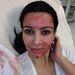 Kim Kardashian a vámpírszérum-terápiával kínozza magát