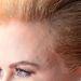 Észrevette már, Nicole Kidman például eléggé kopaszodik? A hajvonala fölfelé kúszik, és ritkásabb is a haja.