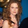 Nicole Kidman arca rengeteget változott az elmúlt években.