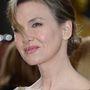 Renée Zellweger arca sem véletlenül ilyen sima.