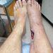 Ép láb vs. sebesült láb.